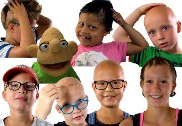 Wat is Alopecia nu eigenlijk?